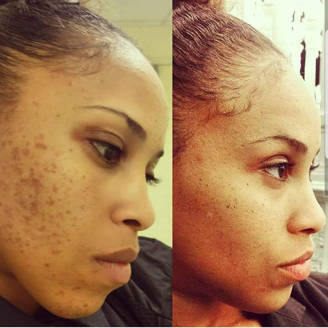 The Answer to our Skin Problems is in Nature! Before/After