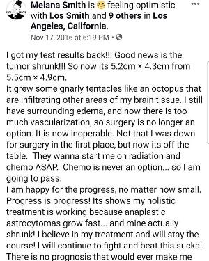 Shrinking Stage 3 Astrocytoma!