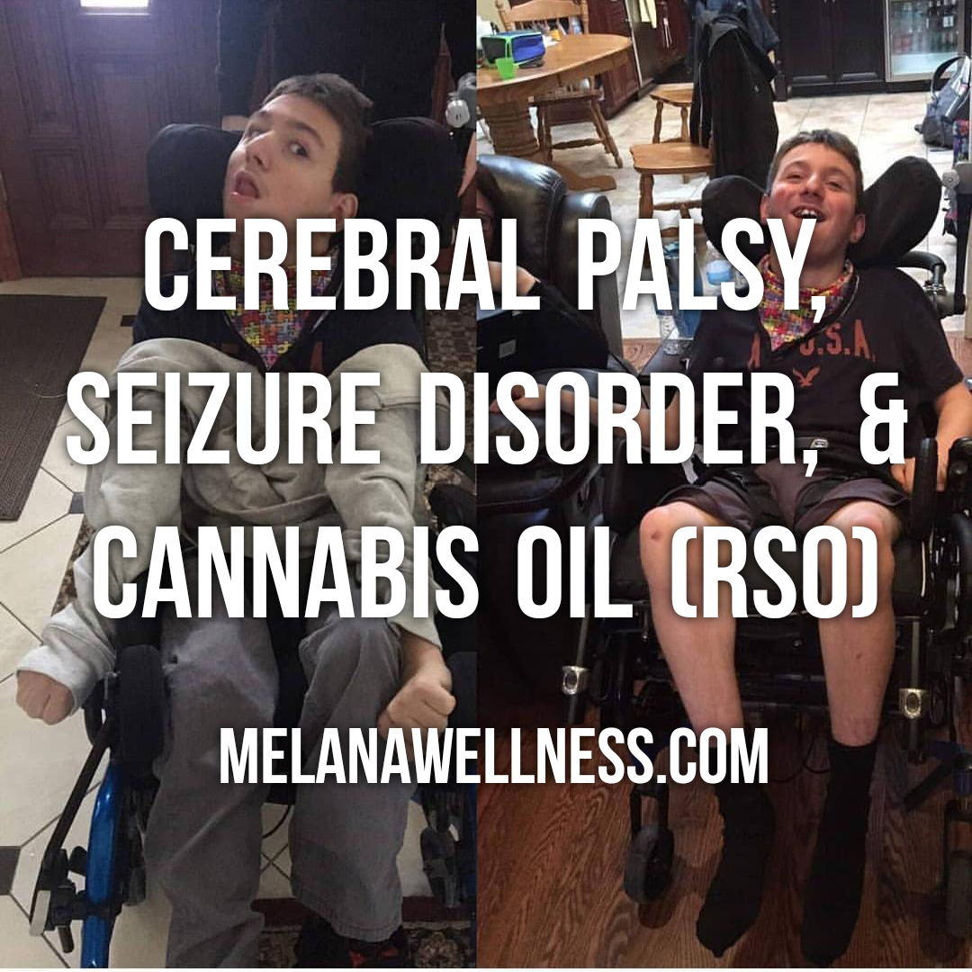 The Effects of Cannabis Oil (RSO/FECO) on Cerebral Palsy & Seizure Disorder!